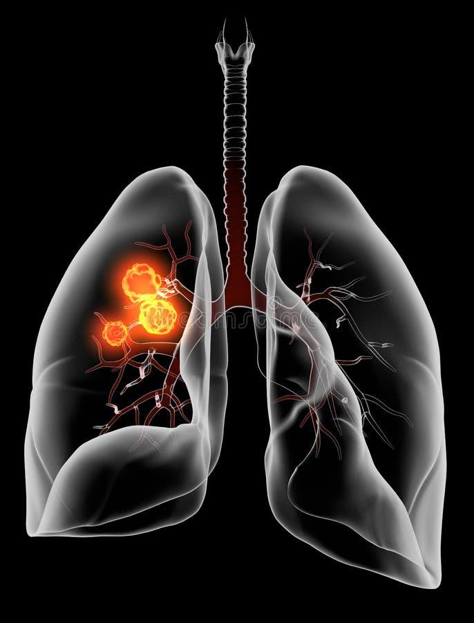 Longkanker of carcinoom, medisch illustratie 3D op zwarte achtergrond vector illustratie