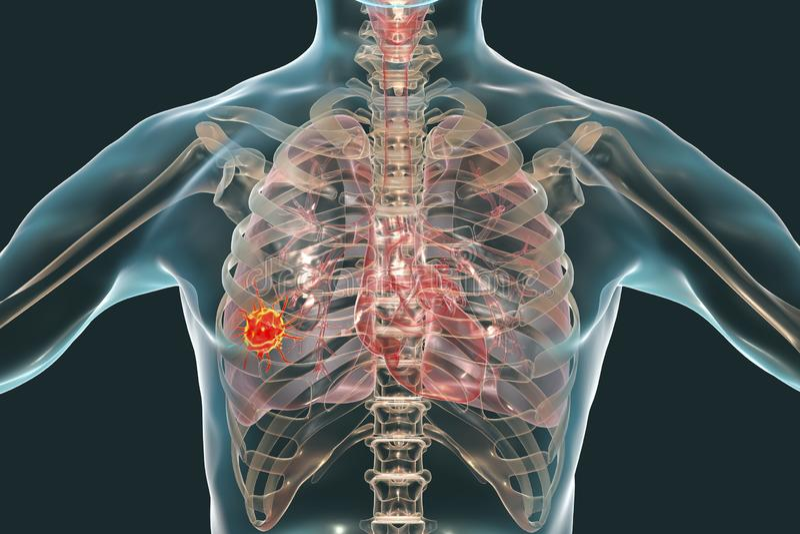Longkanker, conceptueel beeld stock illustratie