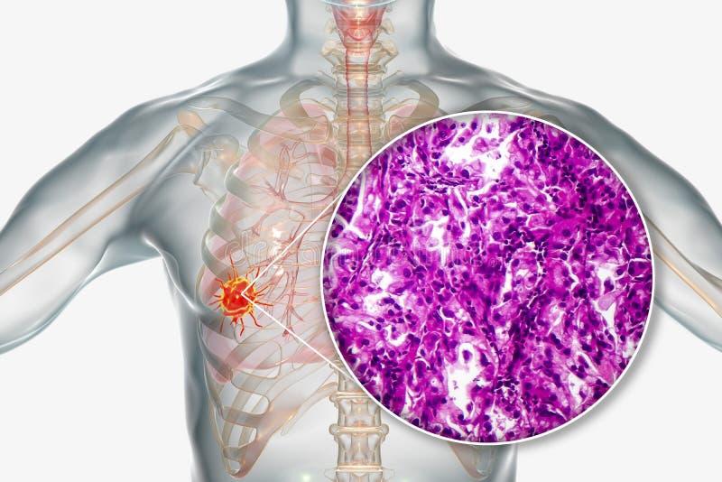Longkanker, illustratie en foto onder microscoop royalty-vrije illustratie