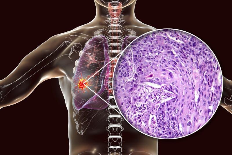 Longkanker, illustratie en foto onder microscoop vector illustratie