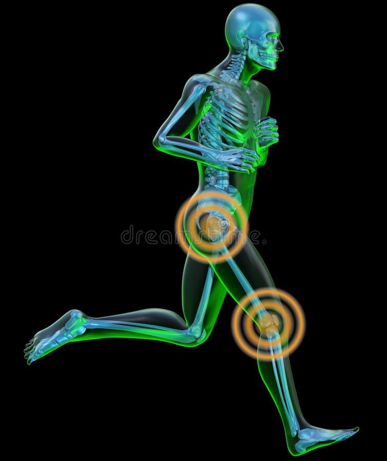 Lopende mens die bij röntgenstraal met pijn bij de heup wordt gezien stock illustratie