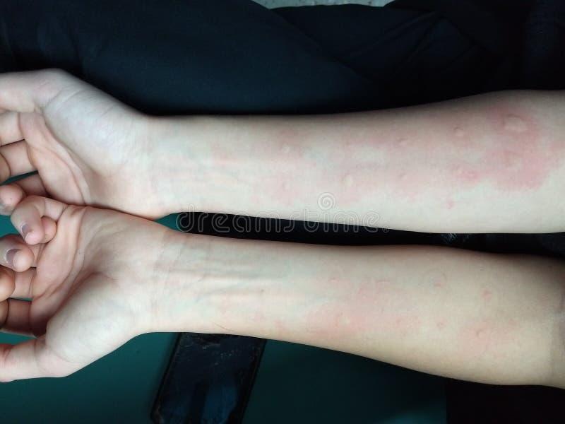Los brazos de un niño swolen después de pruebas de la alergia foto de archivo libre de regalías