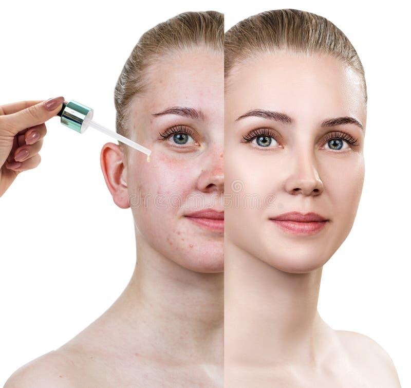Los cosméticos engrasan la aplicación en cara de la mujer joven imágenes de archivo libres de regalías