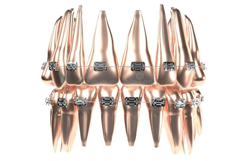 Los dientes de oro dentales modelan con los apoyos, en el fondo blanco Ejemplo fotorrealista de los dientes y de los apoyos de un imágenes de archivo libres de regalías
