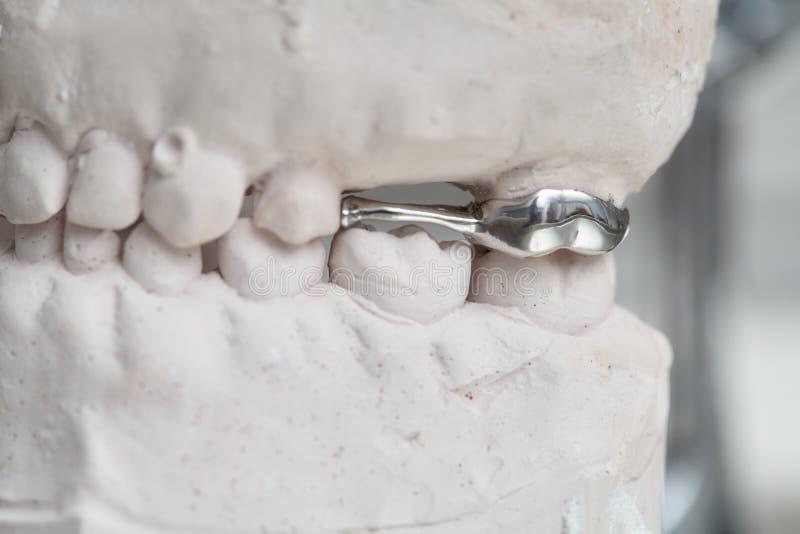 Los dientes dentales grises de la prótesis moldean, arcilla que las gomas humanas modelan foto de archivo libre de regalías