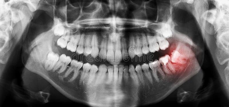 Los dientes dentales radiografían la exploración panorámica con el diente de sabiduría sesgado imagen de archivo libre de regalías