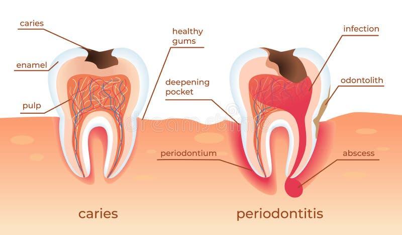 Los dientes malsanos se colocan en crudo en gomas E ilustración del vector