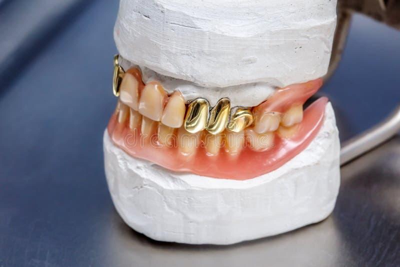 Los dientes prótesis, gomas humanas del oro dental del molde de la arcilla modelan imagenes de archivo