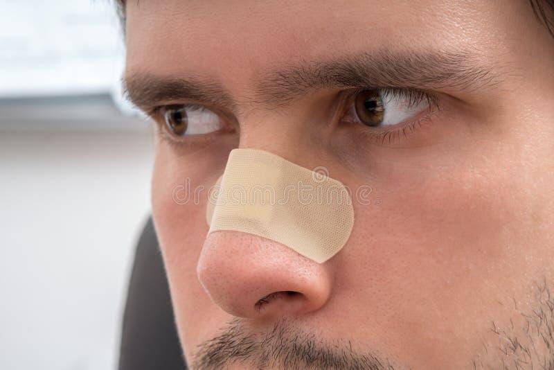 Los jóvenes heridos sirven tienen yeso sobre su nariz fotografía de archivo libre de regalías