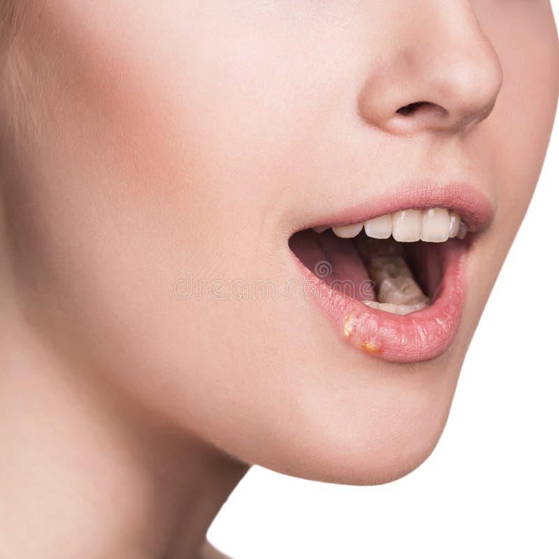 Los labios hermosos infectaron el virus de herpes fotografía de archivo libre de regalías