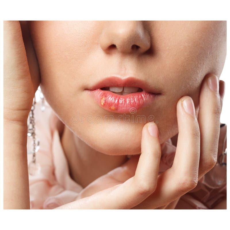 Los labios hermosos infectaron el virus de herpes fotografía de archivo