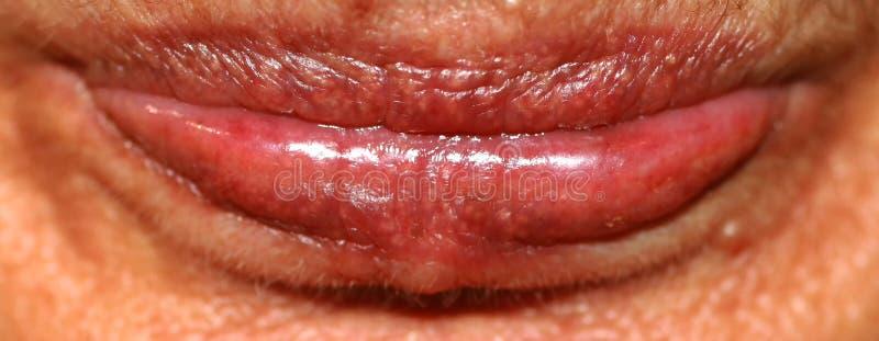 Los labios se cierran para arriba Arrugas en los labios Botex de los labios boteks imagen de archivo libre de regalías