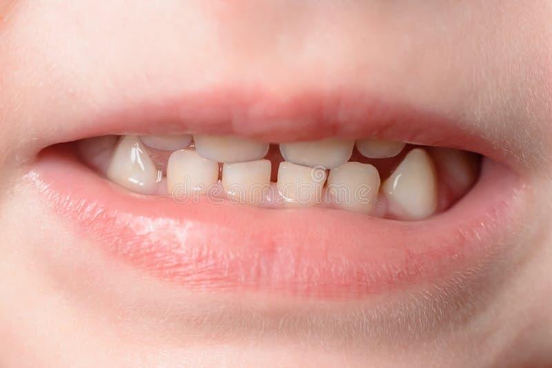 Los pequeños dientes de bebé se tiran en la macro cuando ella ríe imagen de archivo
