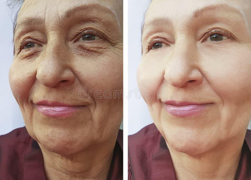 Los resultados maduros de la corrección de las arrugas de la mujer mayor ponen en contraste antes y después de procedimientos imagenes de archivo