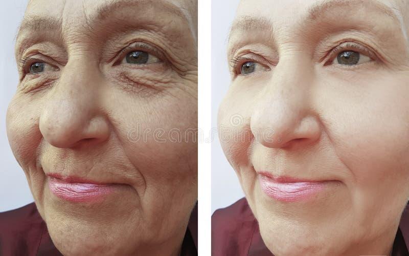Los resultados maduros de las arrugas de la mujer mayor ponen en contraste antes y después de procedimientos imagenes de archivo
