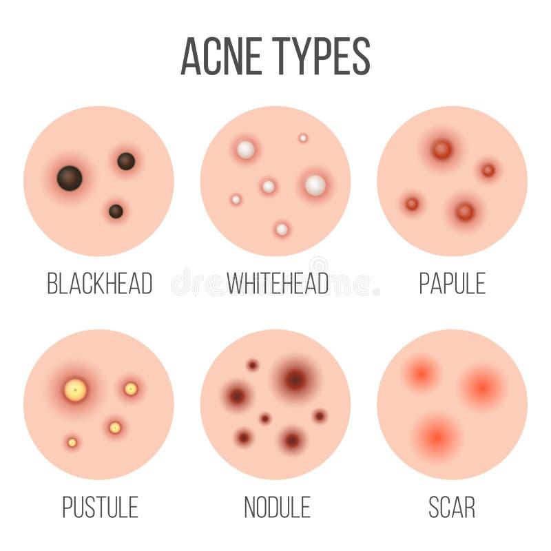 Los tipos creativos de acné, espinillas, piel del ejemplo del vector pores, espinilla, whitehead, cicatriz, comedón, etapas diagr libre illustration