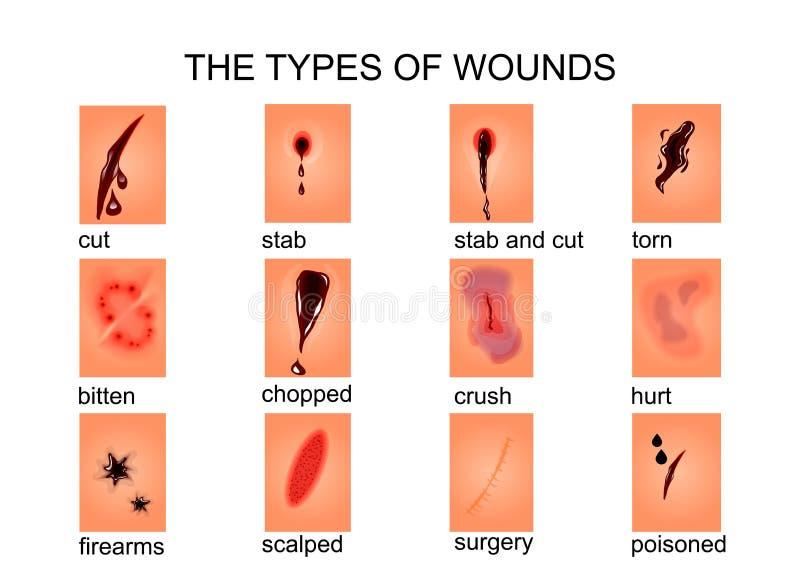 Los tipos de heridas ilustración del vector