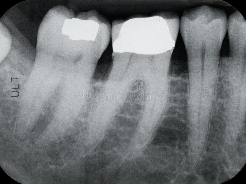 Lower Left Periodontal X-rays. X-rays revealing periodontal disease of the gum and bone royalty free stock photo