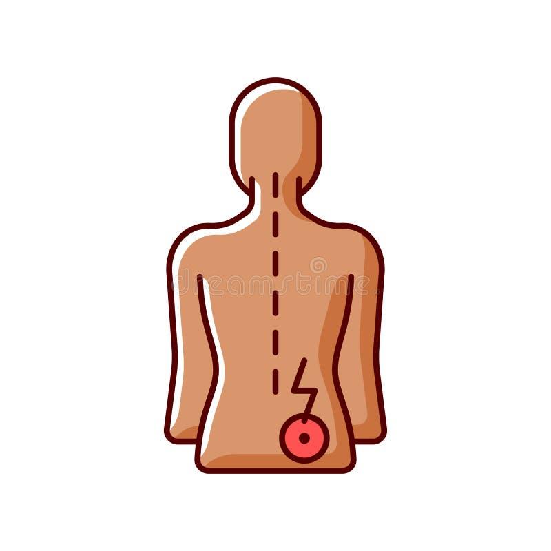 Prostatitis radiculitis