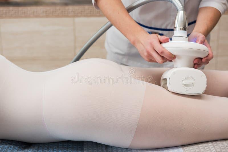 LPG, και σώμα που περιγράφει την επεξεργασία στην κλινική στοκ εικόνες