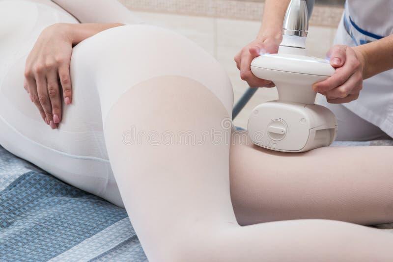 LPG, και σώμα που περιγράφει την επεξεργασία στην κλινική στοκ φωτογραφίες με δικαίωμα ελεύθερης χρήσης