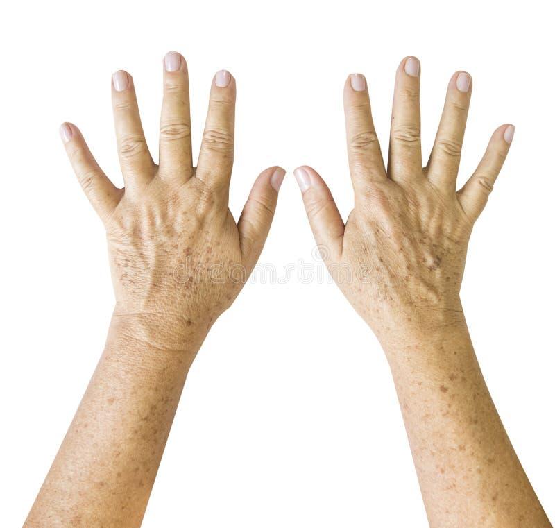 ?ltere Frau, geknitterte Handpalme mit den deutlich sichtbaren Adern, die heraus vorw?rts erreichen lizenzfreies stockbild