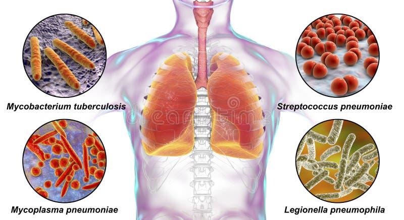 Ludzcy oddechowi patogeny ilustracji