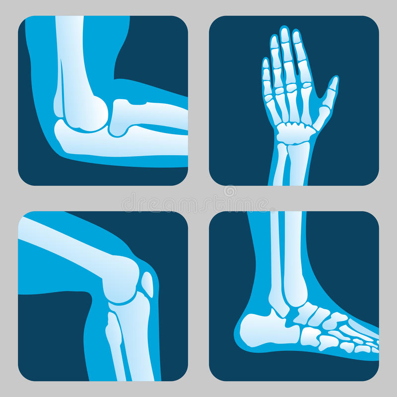 Ludzcy złącza, kolano i łokieć, kostka nadgarstku wektoru Medyczny ortopedyczny set ilustracji