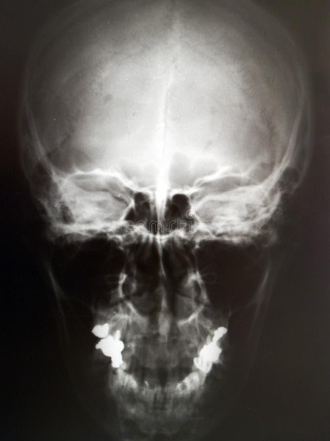 ludzka czaszka promieni x obrazu obrazy stock