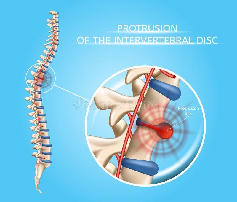 Ludzka kręgosłup choroba Wektorowy Anatomiczny Infographic ilustracji