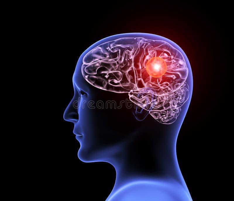 Ludzka migreny migrena ilustracja wektor