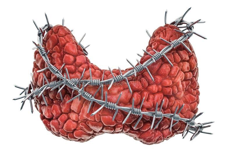 Ludzka tarczyca z drutem kolczastym Tarczycowej choroby pojęcie - ludzki charakter - 3d rend royalty ilustracja