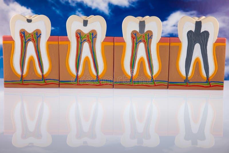 Ludzka ząb struktura, jaskrawy kolorowy brzmienia pojęcie fotografia stock