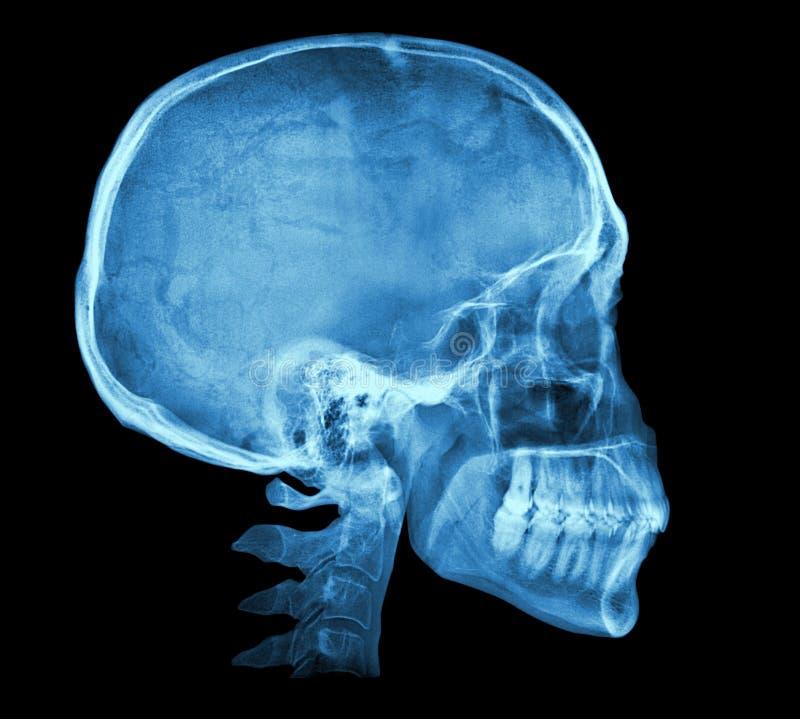 Ludzki czaszki promieniowania rentgenowskiego wizerunek fotografia royalty free