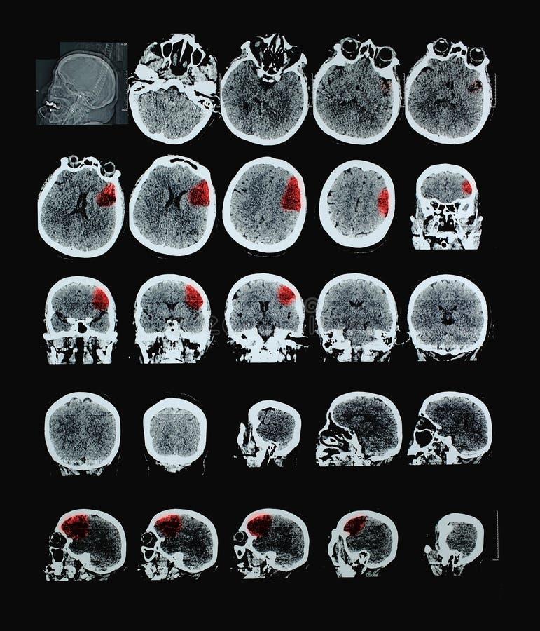 Ludzki mózg CT zdjęcia royalty free