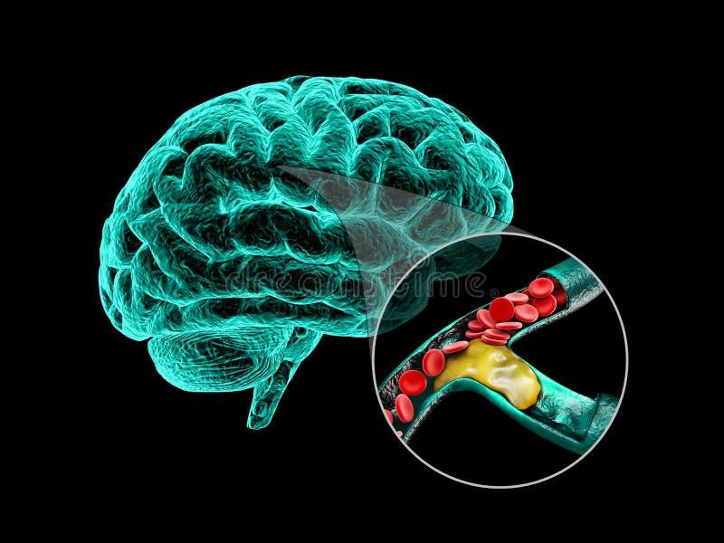 Ludzki mózg z cerebralną miażdżycą Ludzki mózg anatomii 3d ilustracja ilustracja wektor