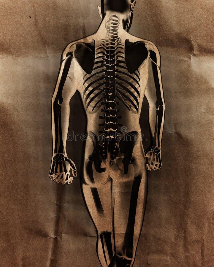 Ludzki prześwietlenie obraz cyfrowy z kościami malować zdjęcie royalty free