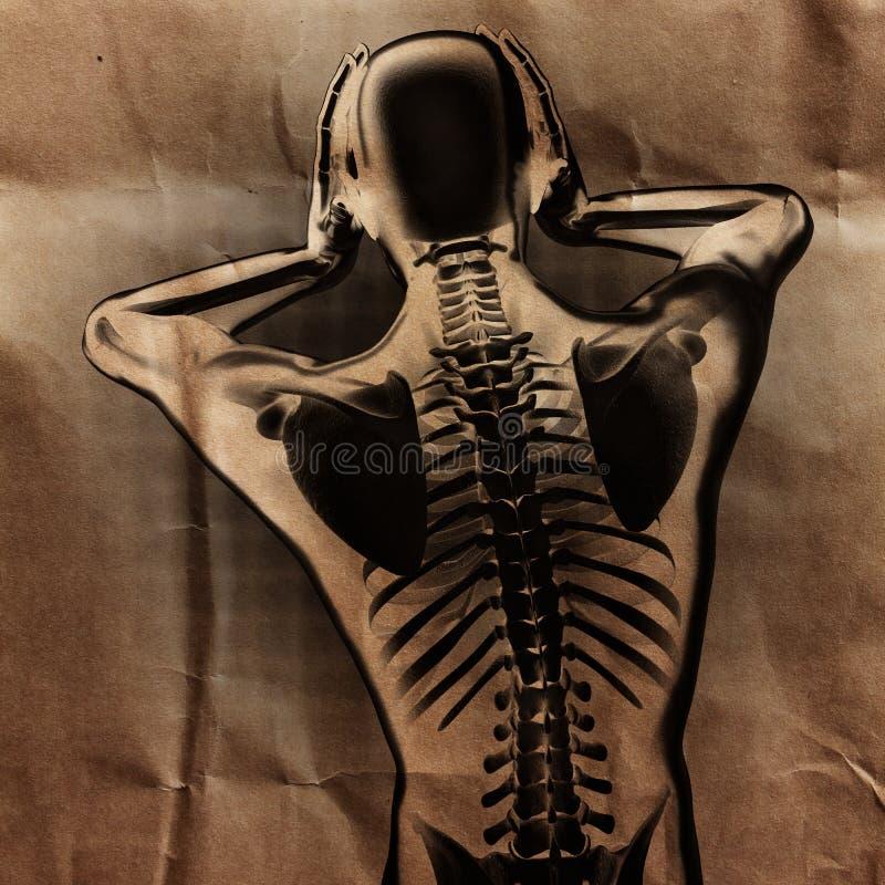 Ludzki prześwietlenie obraz cyfrowy z kościami malować obraz stock