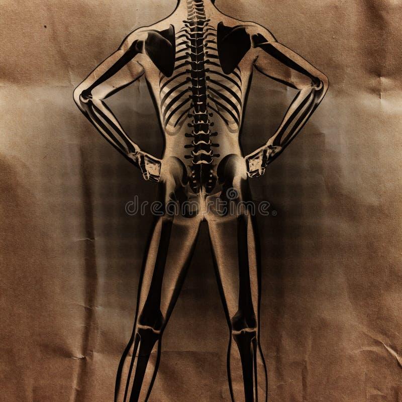 Ludzki prześwietlenie obraz cyfrowy z kościami malować obraz royalty free
