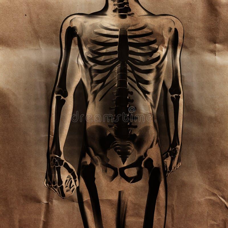 Ludzki prześwietlenie obraz cyfrowy z kościami malować zdjęcia stock