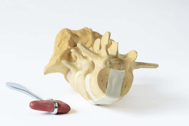 Lumbale stekel model en reflexhamer stock foto's