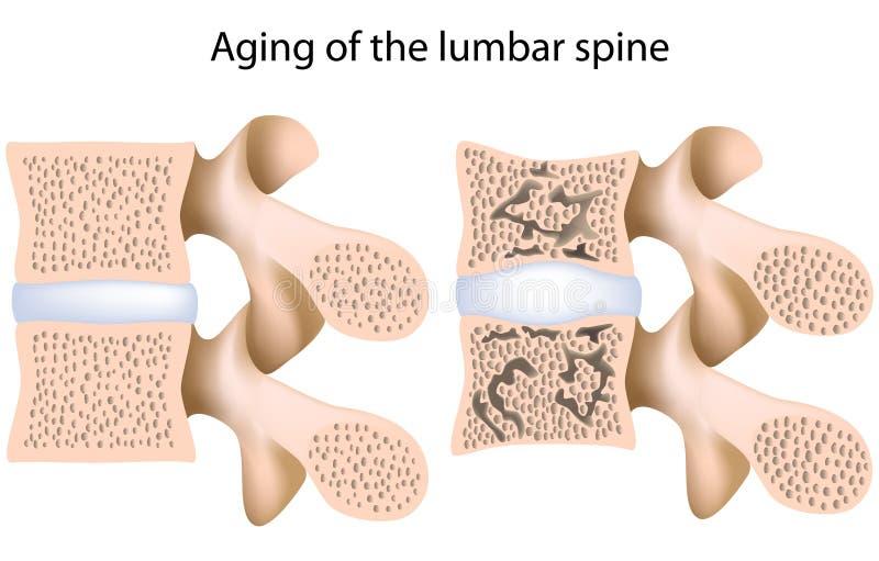 Lumbale stekelosteoporose vector illustratie