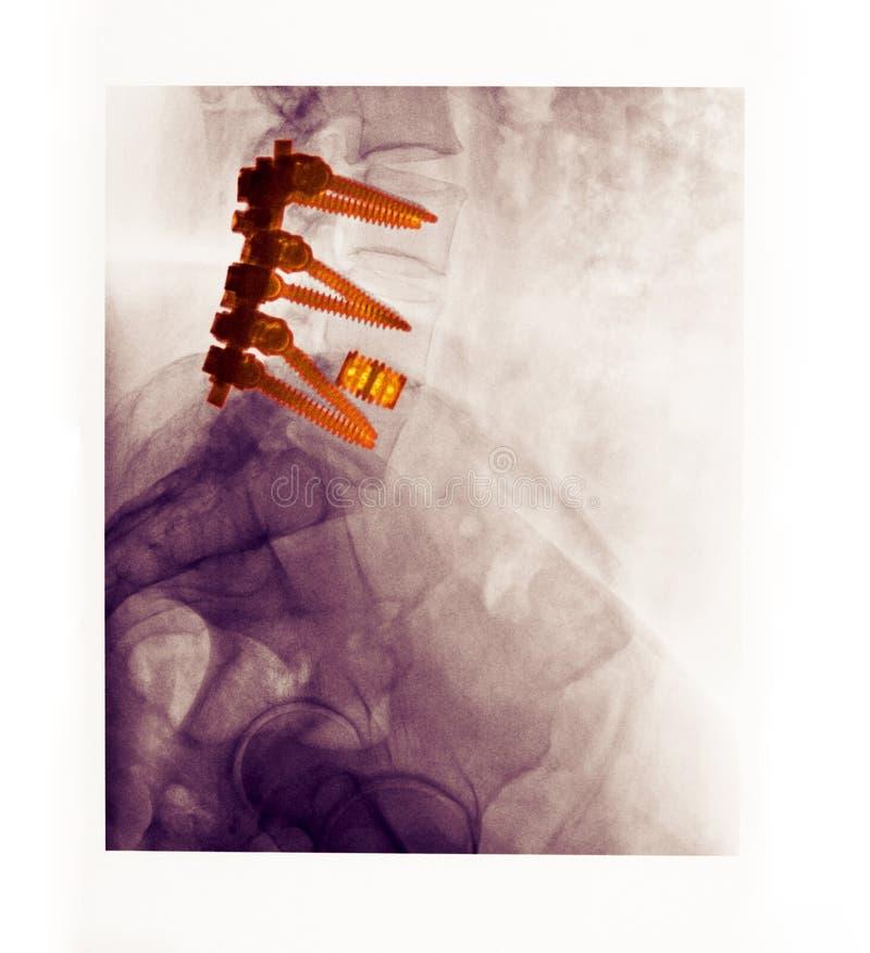 Lumbale stekelröntgenstraal die een ruggegraatsfusie toont stock fotografie