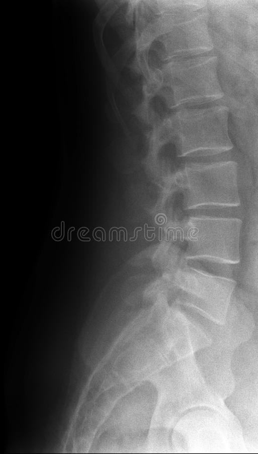 Lumbar spine. X-ray medical photo royalty free stock photo