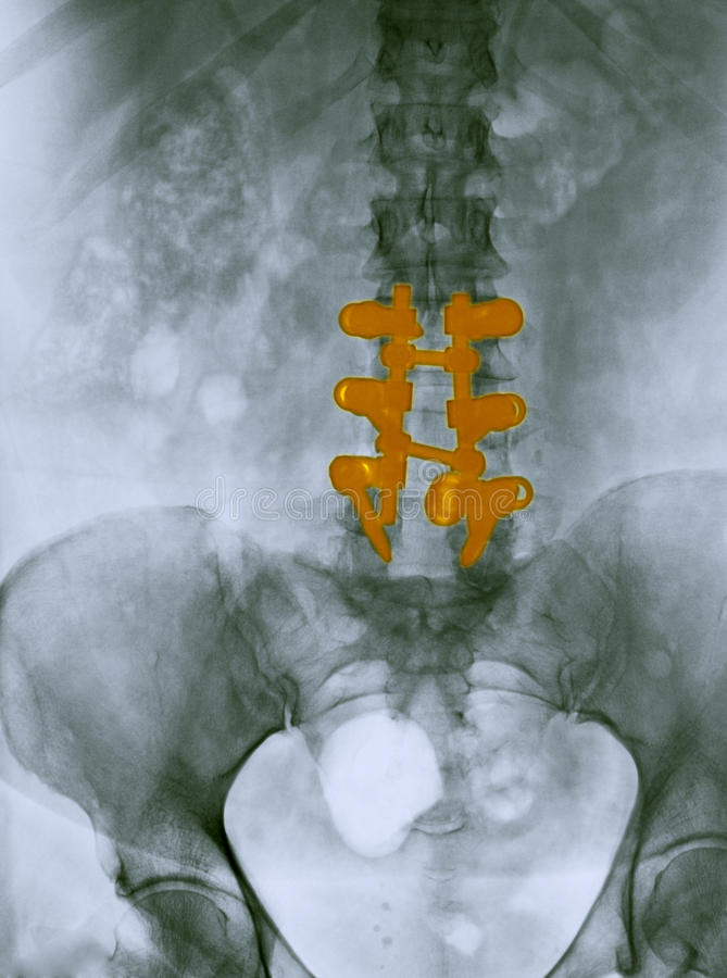 Lumbar spine x-ray showing a spinal fusion royalty free stock photo