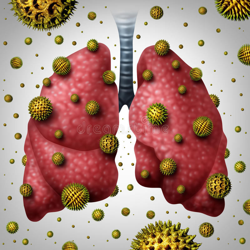 Lung Allergy. Medical concept as human lungs with airborne pollen grains infecting the breathing organ as an asthma trigger or allergic reaction symbol with 3D stock illustration