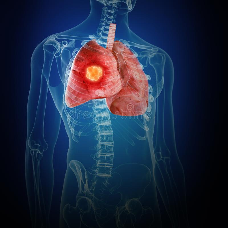 Lung Cancer ilustração do vetor