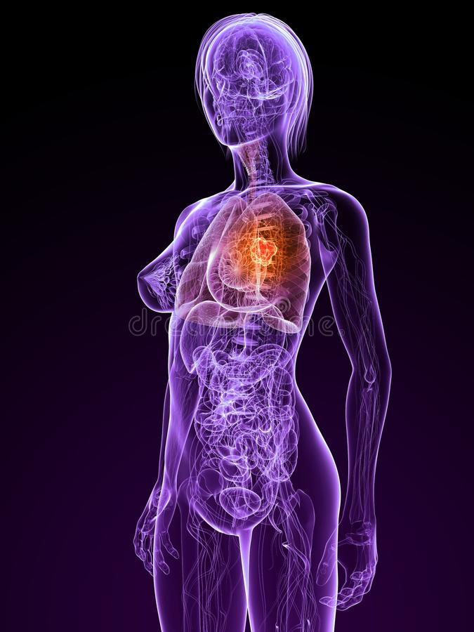 Lung cancer. 3d rendered illustration of a transparent female anatomy with tumor in lung stock illustration