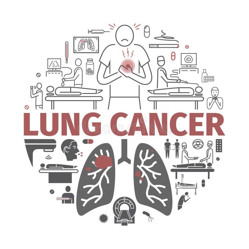 Lung Cancer baner Tecken orsaker, behandling Vektortecken för rengöringsdukdiagram stock illustrationer