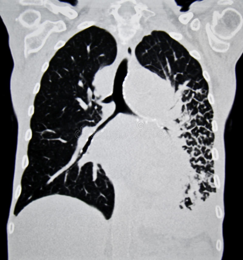 Download Lung cancer CT stock image. Image of iodine, disease - 32750531